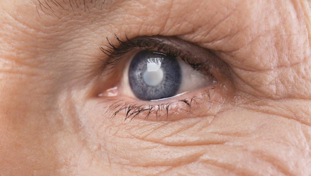 zbliżenie na oko starszej osoby, która ma zaćmę